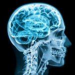 Cognitive-Neurological Support